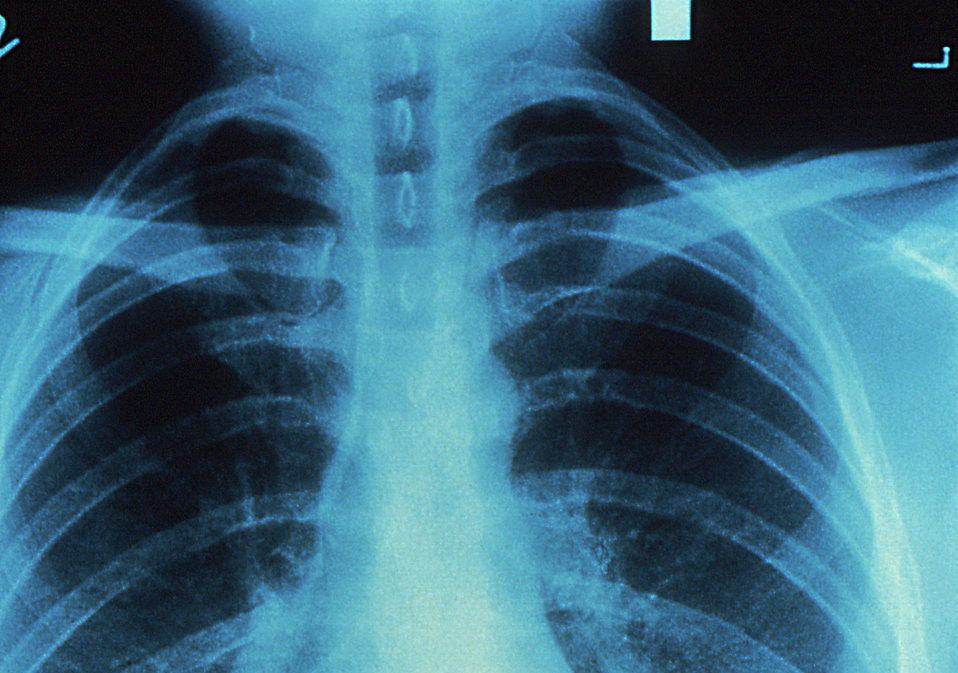 chest x ray pv