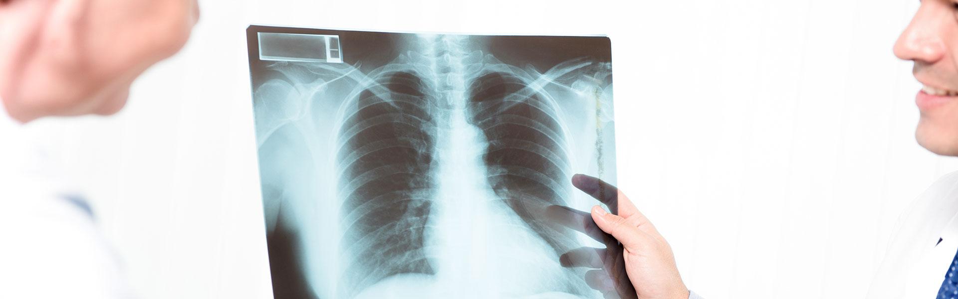 x rays hero