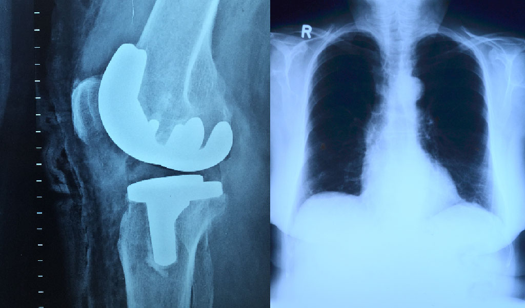 x rays imagery
