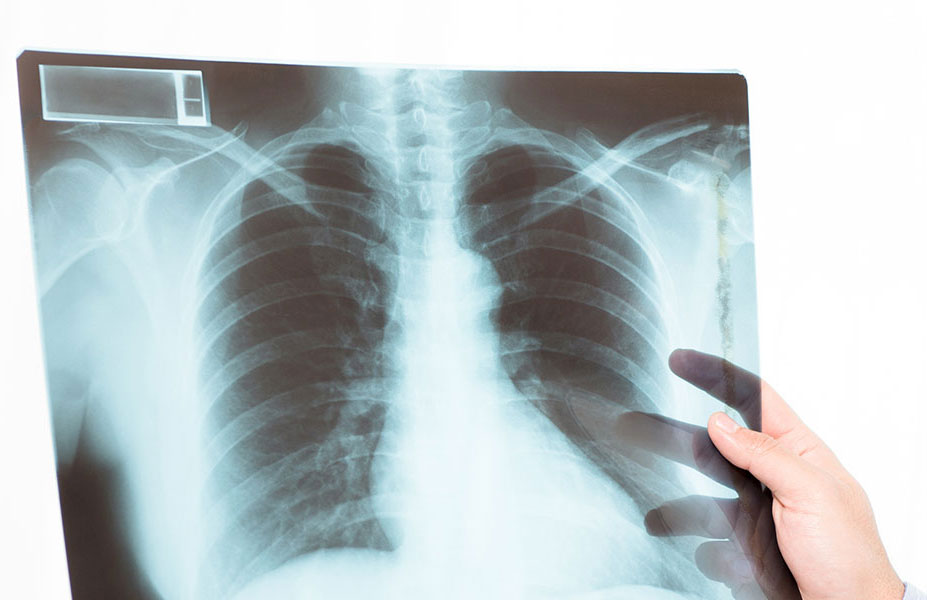 x rays results