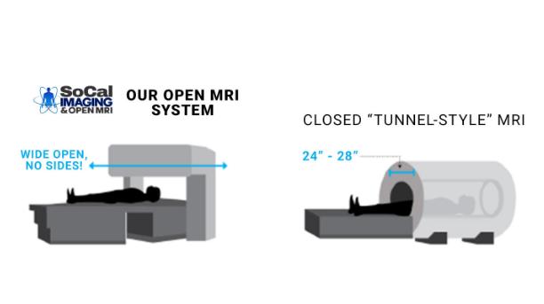 closed mri vs open mri
